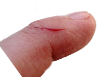 cut-finger