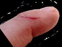 cut-finger